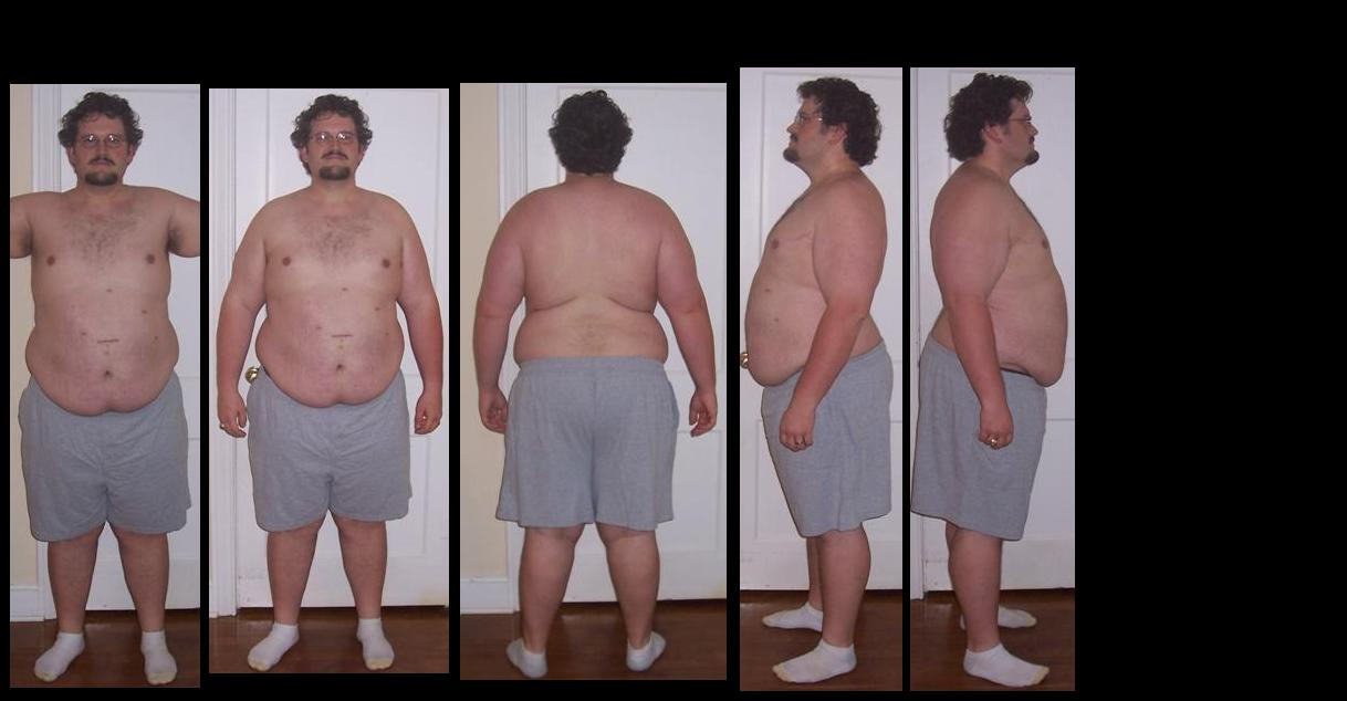 Before and After Lap Band Surgery - PICTURES ONLY - Page ...