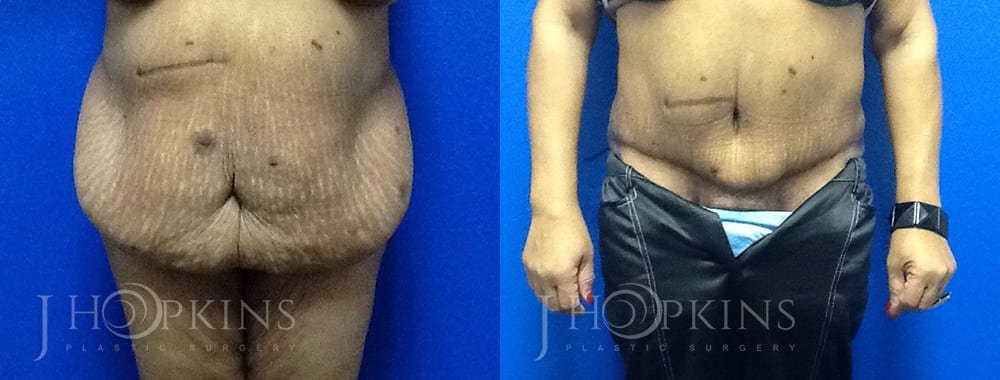 Panniculectomy-Before-and-After-Photos-P