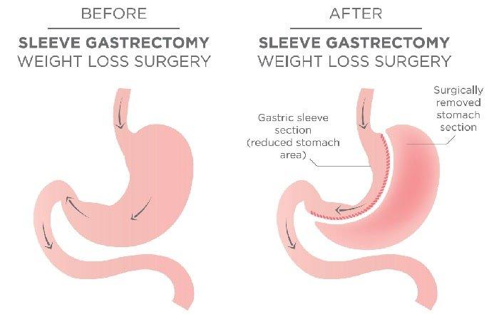 gastric-sleeve-surgery.jpg